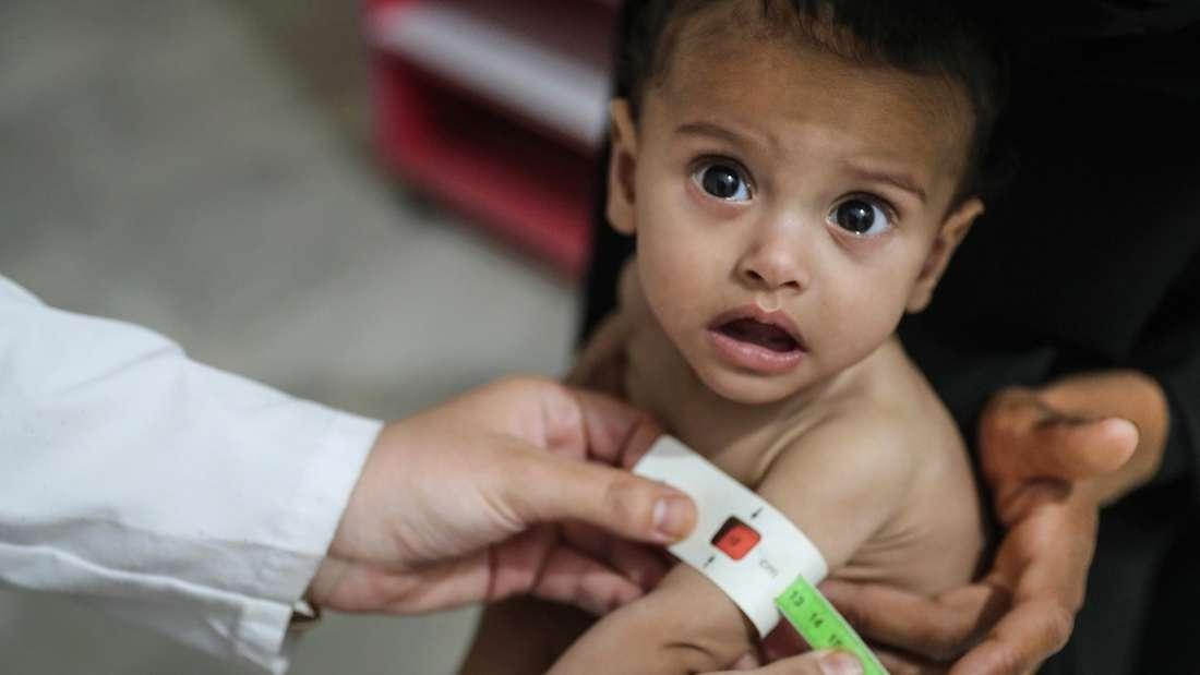 Der Hunger weltweit nimmt zu: Ein unterernährtes Kind in Syrien.